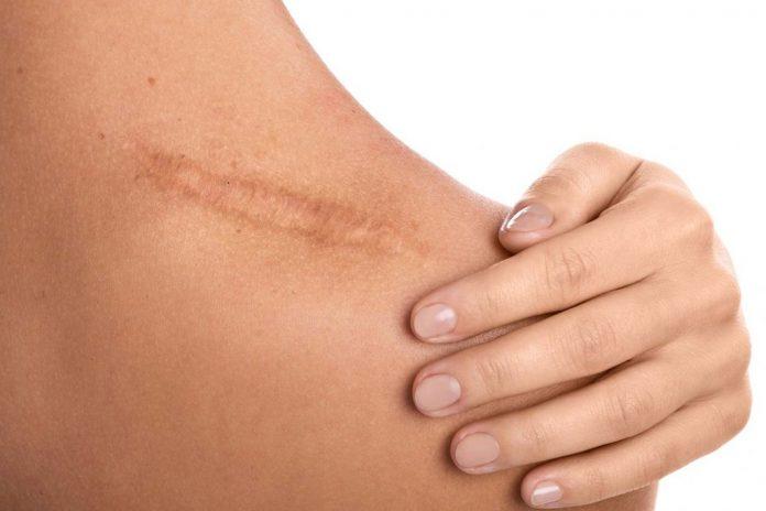 Cara menghilangkan bekas luka secara alami
